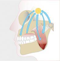 zähne knirschen tinnitus